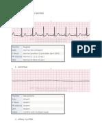 Electrocardiography Rhythm