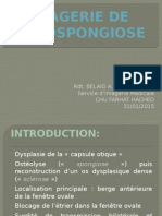 otospongiose.pptx