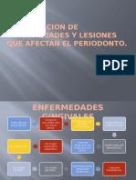 2.-Clasificacion de Enfermedades Periodontales.