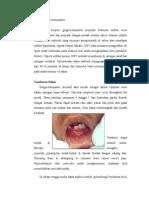 Acute Herpetic Gingivostomatitis