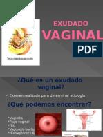 Expo Exu Da Do Vaginal