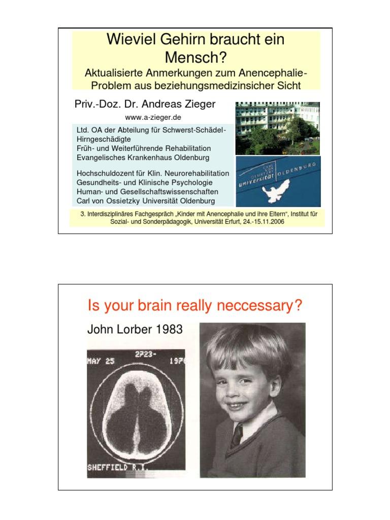 Menschen Ohne Gehirn
