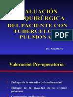 Evaluación Pre Quirurgica en Tbc Pulmonar - Final