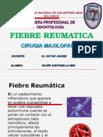 Fiebre Reumatica