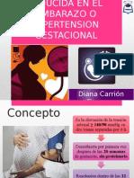 Hipertension Inducida en El Embarazo o Hipertension Gestacional