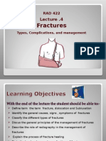 Classification of fractures