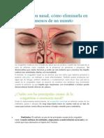 Congestión nasal.doc