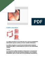Úlcera Péptica Elizabeth Tapia