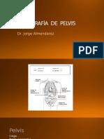 TOMOGRAFu00CDA  DE  PELVIS.pptx