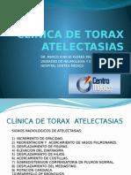 Clinica de Torax Atelectasias 2012