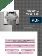 diskinesia escapular
