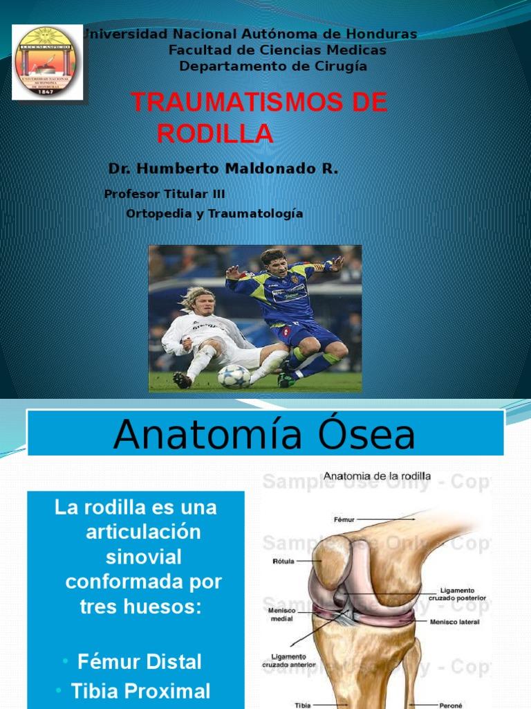 rodillatraumatica.pptx