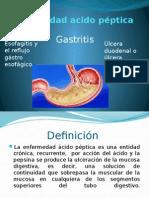 acido peptica