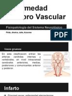 Neuro, Enfermedad Cerebrovascular