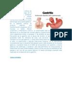 4 Enfermedades Que Afectan El Aparato Digestivo