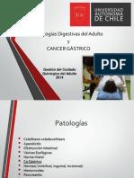 Cancer Gastrico GG