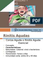 Rinitis Agudas y Crónicas.