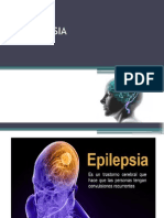 LA EPILEPSIA Diaposit Completa