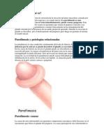 Parafimosis PDF