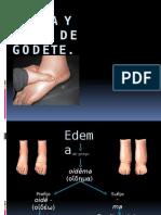 Edema y Signo de Godet