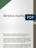 Atresia Esofagica Presentacion