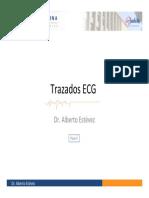 ECG_parte_3