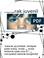 Katarak juvenil