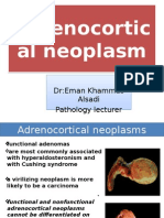 6 Adrenocortical Neoplasm