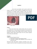 Ranula Dan Sialolithiasis