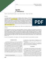 Apendicitis aguda, articulo de revisión