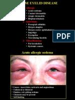 03Diffuse Eyelid Diseases