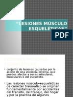 Lesiones músculo esqueléticas