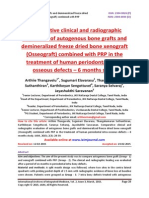 Comparative clinical and radiographic evaluation of autogenous bone grafts and demineralized freeze dried bone xenograft (Osseograft) combined with PRP in the treatment of human periodontal intra-osseous defects – 6 months study