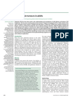 Primary Brain Tumors in Adults
