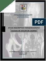 Atlas de Cadera