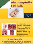 Neumonia Congenita