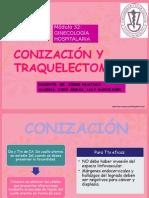 Conización y Traquelectomía