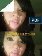 Síntomas Del Vitíligo