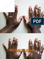 Vitiligo en Niños