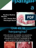 Herpangina.pptx