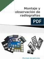Montaje de radiografia bucales
