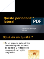 Quiste periodontal lateral.pptx