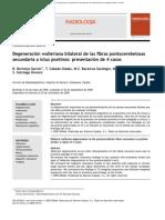 Degeneración Walleriana Bilateral de Las Fibras Pontocerebelosas Secundaria a Ictus Pontinos Presentación de 4 Casos