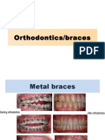 Orthodontics PPt