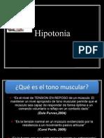 Hipotonía.ppt