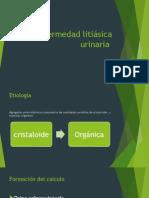 Enfermedad Litiasica Urinaria
