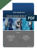 Tumores Benignos de los Maxilares RX