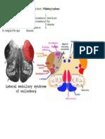 UWORLD- Self Note-- Infarct on Right Posterior Inferior Cerebellar Artery 1