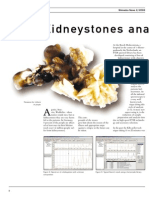 Kidneystones Analysis by FTIR