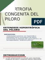 Hipertrofia Congenita Del Piloro